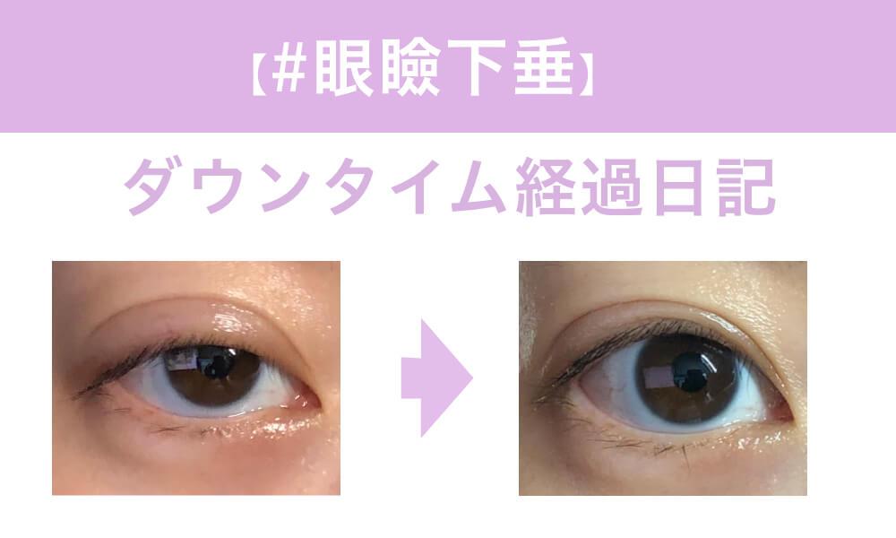 「もとび美容外科クリニック「切らない眼瞼下垂」のダウンタイム経過まとめ!」のアイキャッチ画像